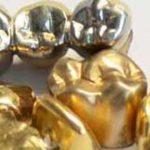 Gold Ankauf Hamburg die Scheideanstalt kauft Ihr Zahngold-gelb-und-weiss