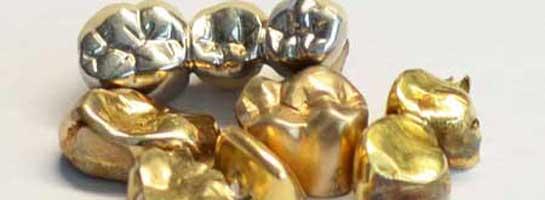 Zahngold-gelb-und-weiss