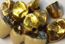 Zahngold Verblend